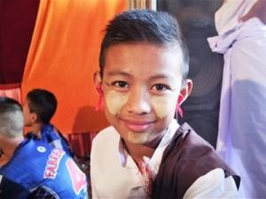 エイズデーのシンボル・赤いリボンを耳につけた少年